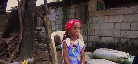 عکس پیرترین دختر جهان با 18 سال سن