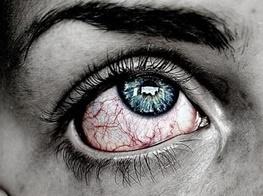 دلیل قرمز شدن چشم در استخر معلوم شد! ادرار در آب