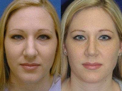عمل جراحی زیبایی روی بینی گوشتی