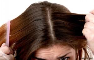 کدام بیماری ها باعث شوره شدید موها می شوند؟