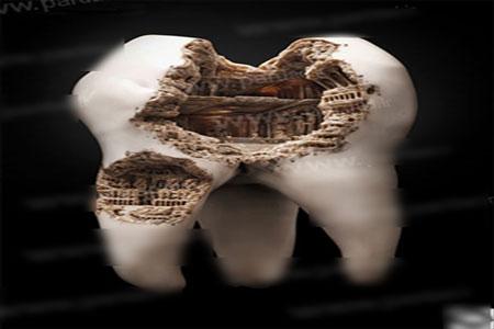 ساخت مجسمه زیبا از دندان