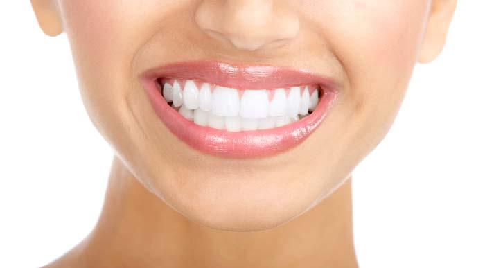 داشتن دندان های سفید با طب سنتی