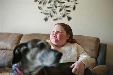 عکس دختری عجیب با بیماری عجیب!