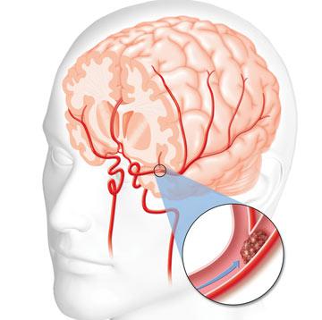 روش های پیشگیری از سکته مغزی