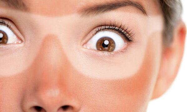 Photo of پیشگیری از آفتاب سوختگی + روش های طبیعی درمان سوختگی پوست با نور خورشید