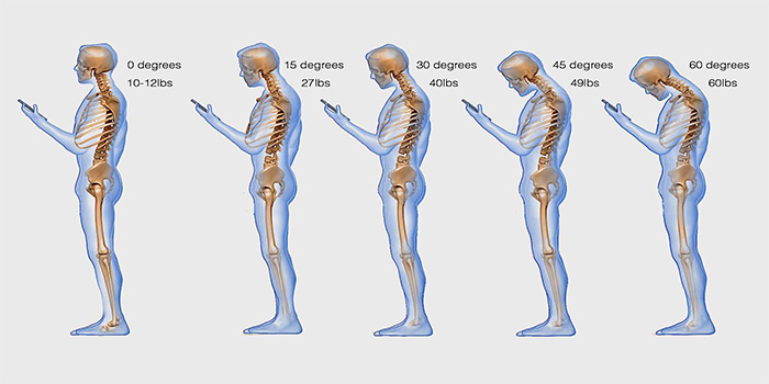 Looking Down At Your Phone Is Harming Your Neck
