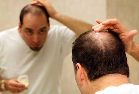 علت ریزش موی مردان