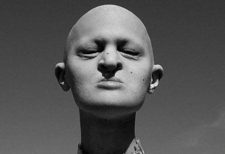 دختر بدون مو با بیماری عجیبی که دارد مانکن شد!