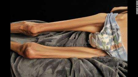 عکس از اندام وحشتناک زنی مبلا به بی اشتهایی عصبی!