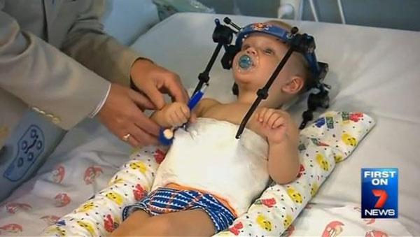 سر کودک چند ماهه پس از قطع شدن پیوند داده شد!