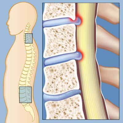 استخوان سازی, علایم تنگی کانال نخاعی