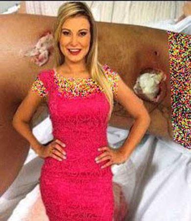 نابود شدن دختر برزیلی با تزریق ژل به بدنش! +عکس