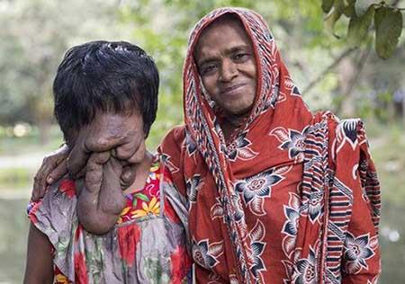 عکس دختر بیچاره ای که صورت ندارد!