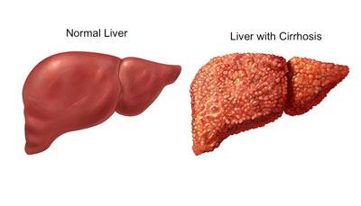 نارسایی کبدی,علائم بیماریهای کبد,پیشگیری از بیماریهای کبدی