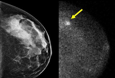جراحی سرطان سینه,سرطان سینه, پرتودرمانی برای درمان سرطان سینه