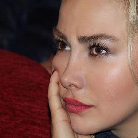 عکس چهره آنا نعمتی