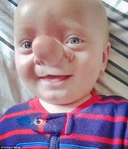 عکس بچه ای که شبیه به پینوکیو شده و مغزش در دماغش است!
