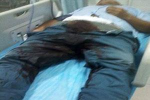 دختری برای انتقام روی آلت تناسلی نامزدش اسیدپاشی کرد