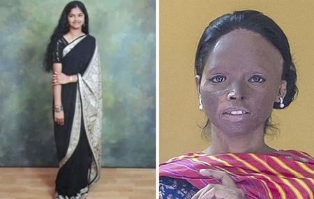 این دختر هندی مدال شجاعت گرفت