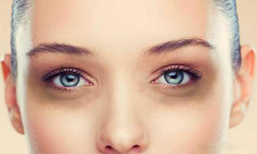 دلیل سیاهی دور چشم در روزهای سرد چیست؟