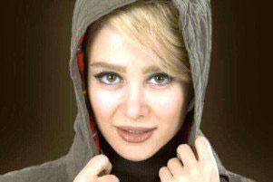 عکس از چهره الناز حبیبی با موهای مجعد و صورت کک مکی