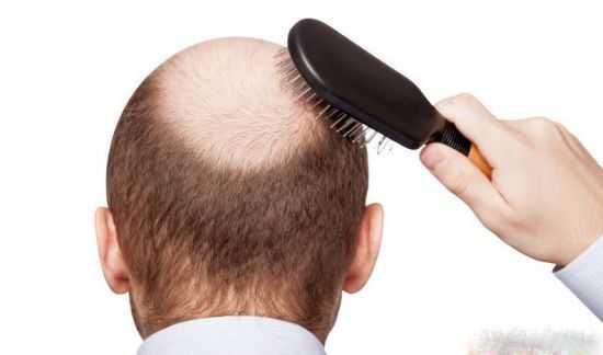 درمان آسان ریزش مو با نسخه های پیازی