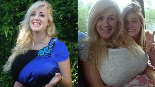 رشد غیرعادی سینه های این دختر 17 ساله رد سن 17 سالگی!
