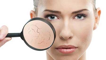 دلیل خشکی پوست در زمستان شاید اشتباهات شما باشد!