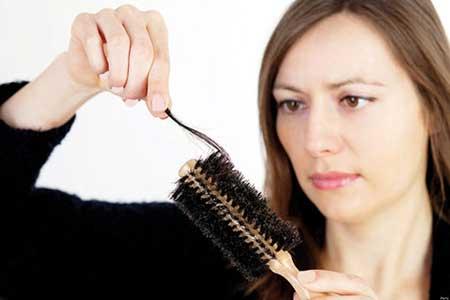 ریزش مو در حاملگی