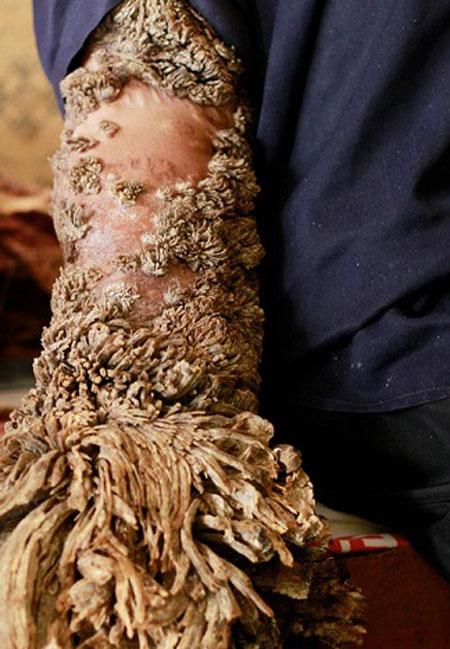 مرد درختی اهل اندونزی در حسرت داشتن همسر فوت کرد!