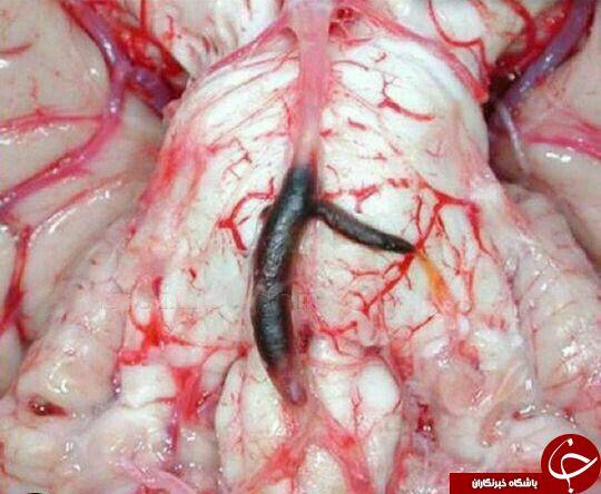عکس از درون مغز انسان پس از سکته مغزی