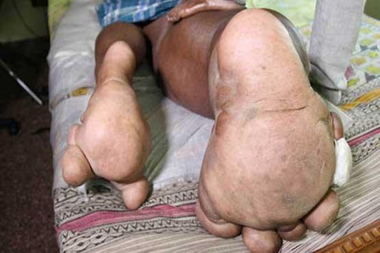عکس های مردی هندی که پایش صد کیلو است!