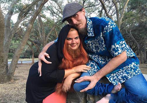 زن عجیب ریش دار با مرد عجیب خرچنگی ازدواج کرد!