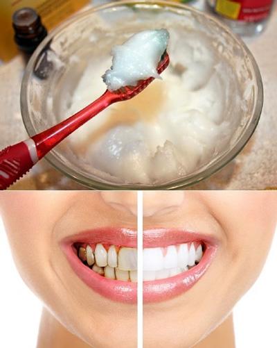 سفید کردن دندان ها برای نوروز با سفیدکننده های خانگی
