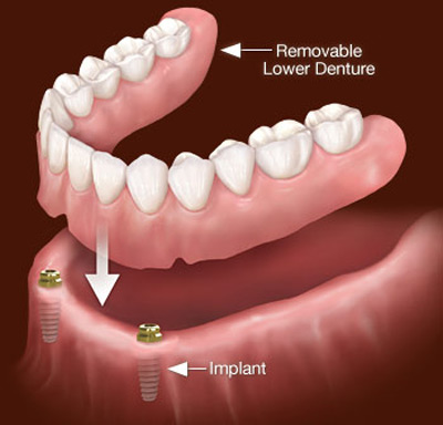 پروتز کامل دندان,دوام پروتز دندان,پروتز دندان