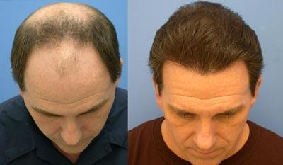 پيوند موی طبيعی,ترمیم مو,عمل کاشت مو