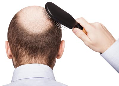 روش های کاشت مو,پیوند مو,پیوند و کاشت مو