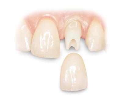 پروتز دندان,پروتز دندان متحرک,پروتز ثابت دندان