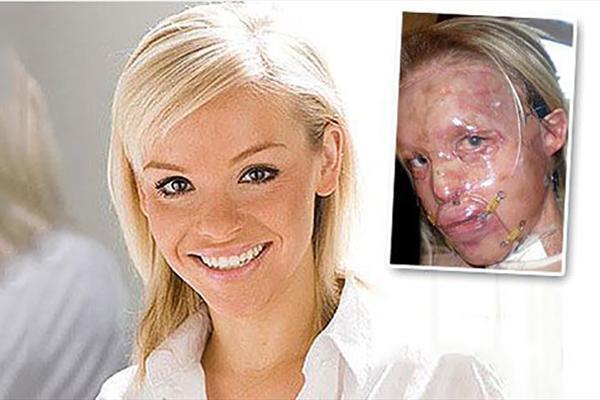 پاشیدن اسید به صورت هنرپیشه زن زیبا توسط نامزدش!