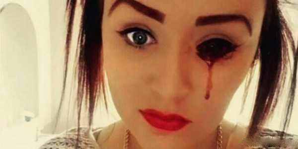 عکس های خونریزی دختر