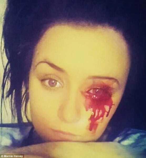 خونریزی دختر