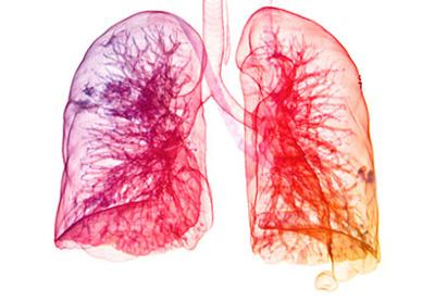 عادت هایی بد که باعث آسیب دیدن ریه ها می شوند