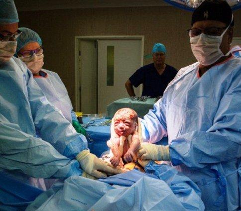 زن جوان نوزاد را از رحم خودش خارج کرد و خودش را سزارین کرد