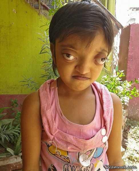 عکس های دختر هندی با چشم های قورباغه ای!