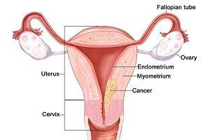 اطلاعات کامل در مورد سرطان رحم