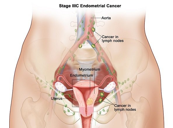 stage3c-ebdometrial-cancer.jpg