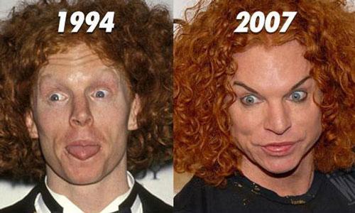 عکس های از وحشتناک ترین جراحی های زیبایی سلبریتی ها!