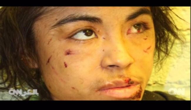 عکس های دختری که به بردگی گرفته شد و پوستش سوزانده شد!