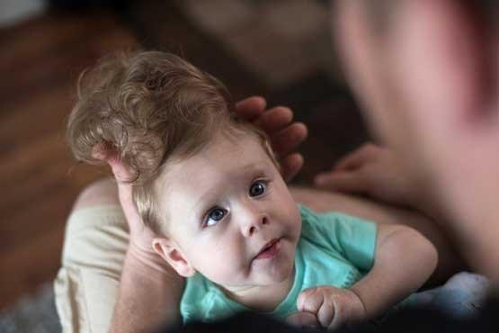 عمل جراحی بازگردن مغز بیرون زده دختر به سرش! (تصاویر)