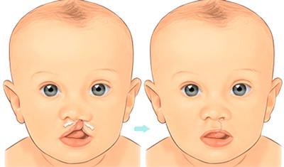 دلیل لب شکری شدن نوزاد و راه درمان لب شکری